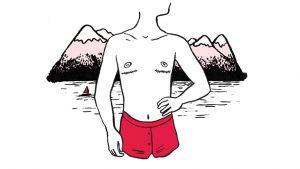 Thumbnail Mastektomien und freie Oberkörper